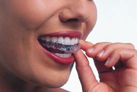 Invisalign for teens and adults
